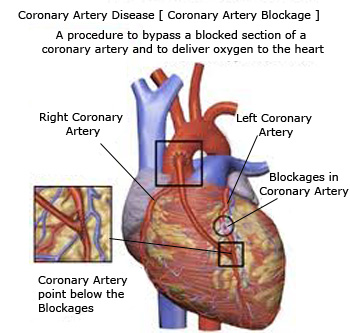 essay on how to reduce coronary heart disease